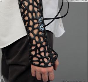 Aplicaciones médicas de las impresoras 3D